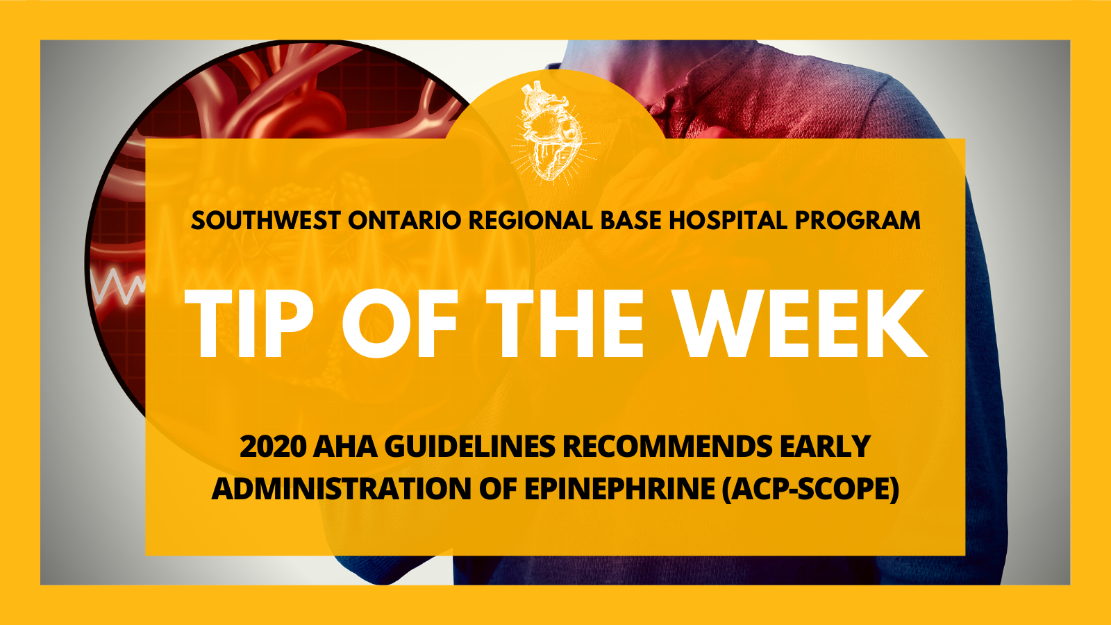 TOTW:2020 AHA Guidelines Recommends Early administration of Epinephrine (ACP-Scope)