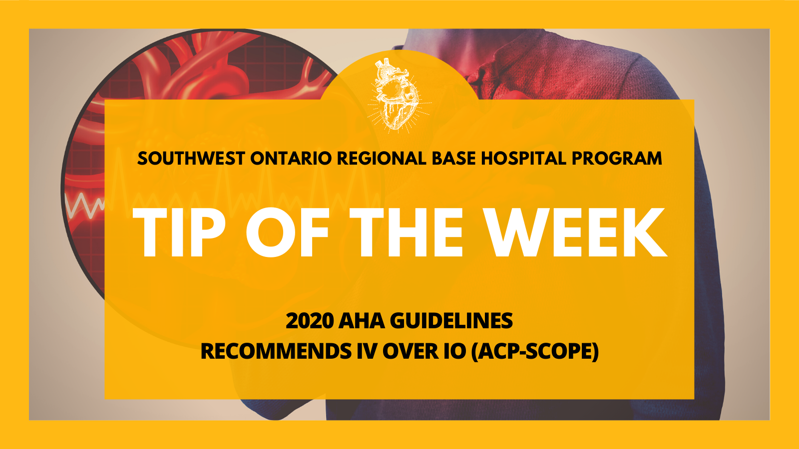 2020 AHA Guidelines Recommends IV Over IO (ACP-Scope)
